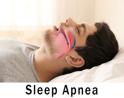 Image of Sleep Apnea