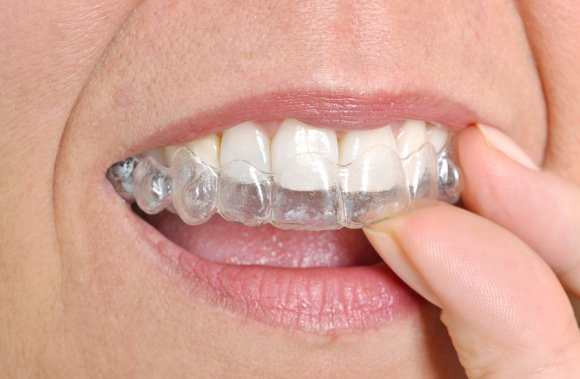Woman placing invisalign