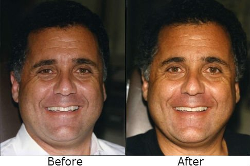 Images before and after the dental treatment